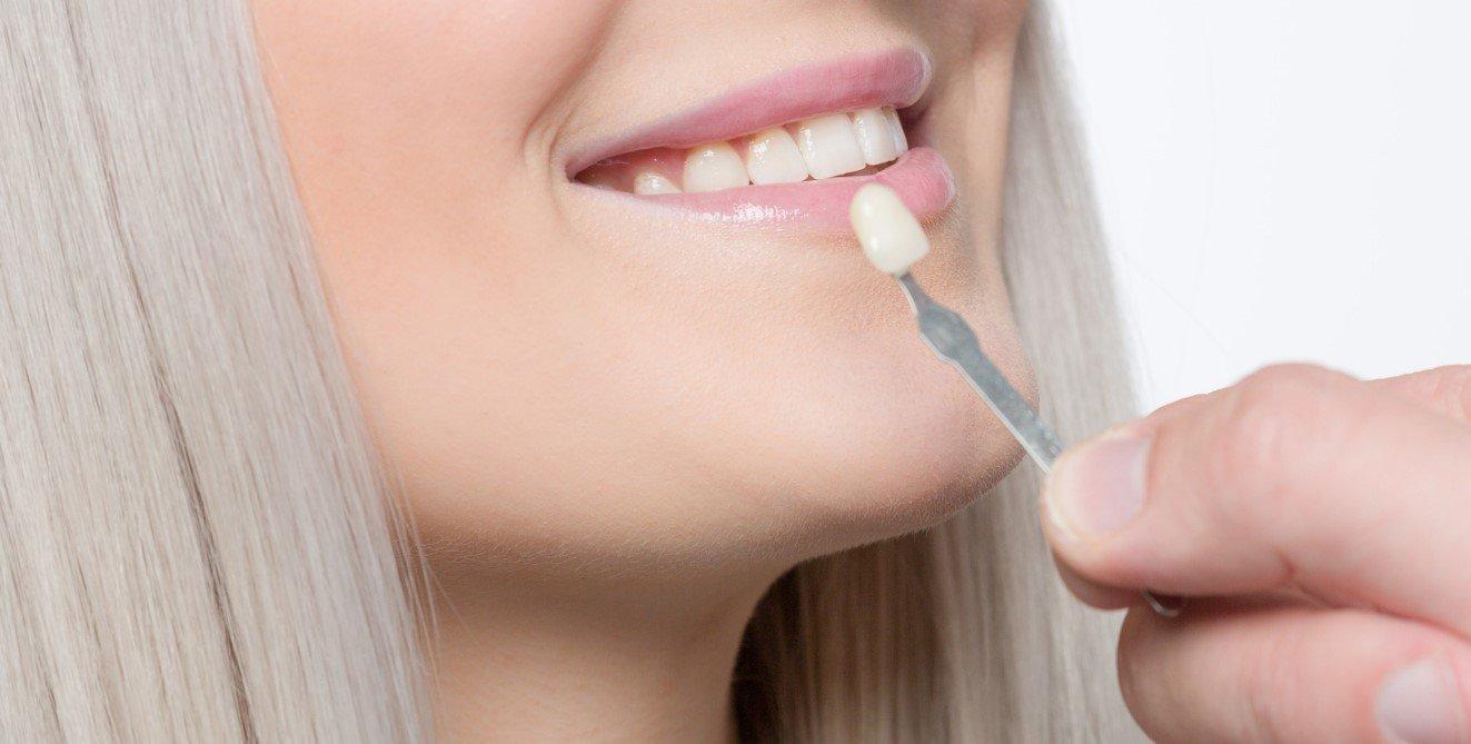 Remboursement couronne dentaire
