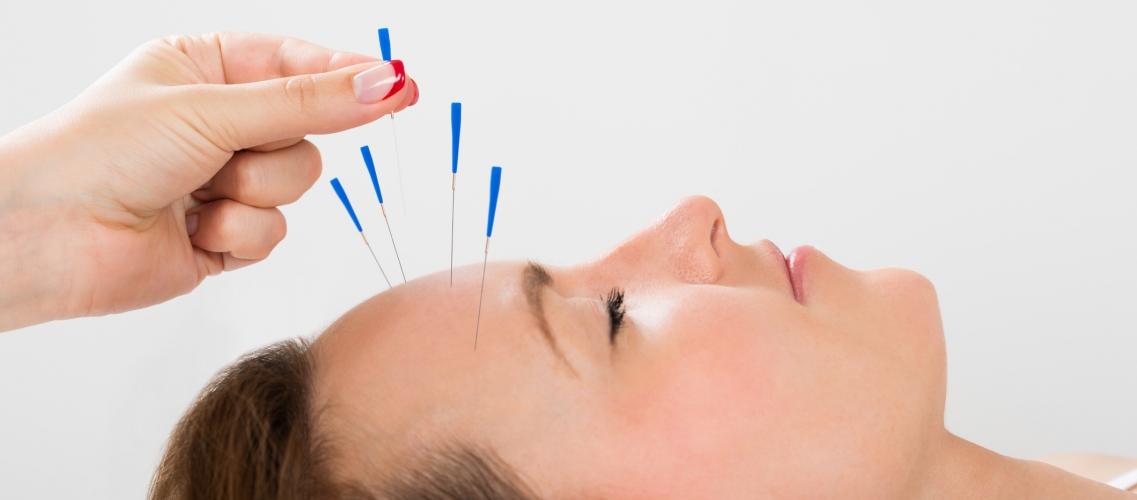 Acupuncture – Les remboursements mutuelles