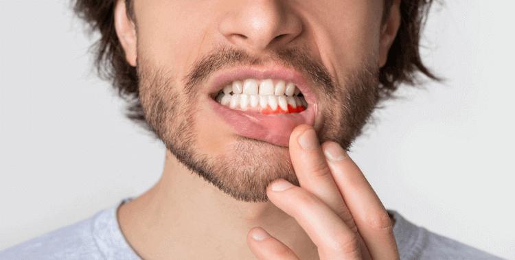 Parodontologie : quel remboursement ?